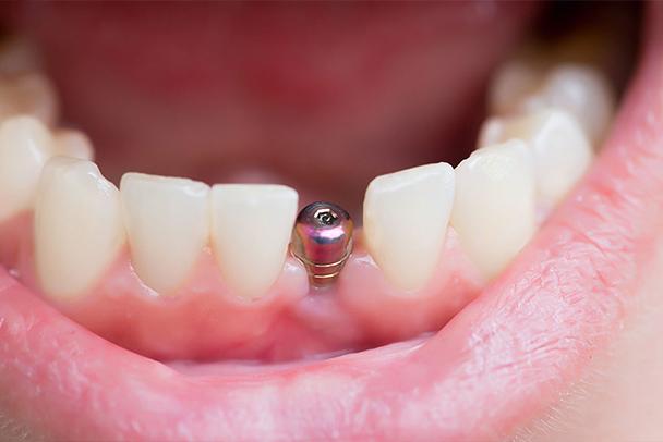 implants-img1